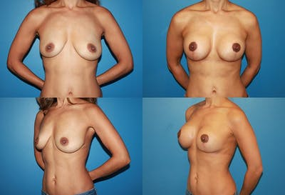 Lollipop Breast Lift with Implants Gallery - Patient 2388598 - Image 1