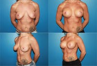 Breast Lift Gallery - Patient 2158664 - Image 1