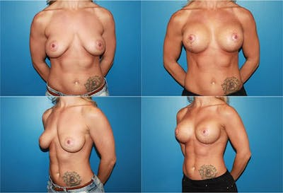Lollipop Breast Lift with Implants Gallery - Patient 2388599 - Image 1