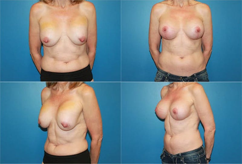 Breast Lift Gallery - Patient 2158665 - Image 1