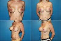 Breast Lift Gallery - Patient 2158666 - Image 1