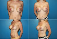 Lollipop Breast Lift with Implants Gallery - Patient 2388601 - Image 1