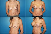 Lollipop Breast Lift with Implants Gallery - Patient 2388602 - Image 1