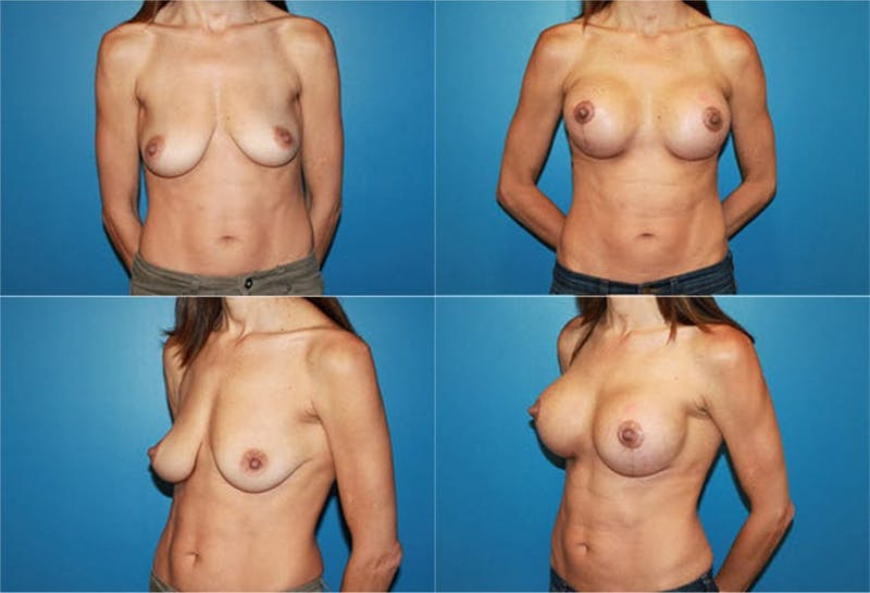 Breast Lift Gallery - Patient 2158667 - Image 1