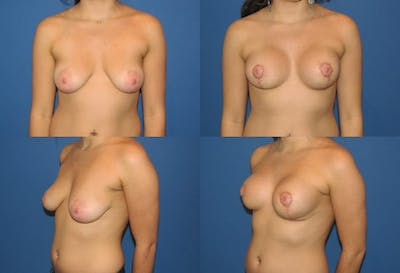 Lollipop Breast Lift with Implants Gallery - Patient 2388603 - Image 1