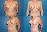 Breast Lift Gallery - Patient 2158669 - Image 1