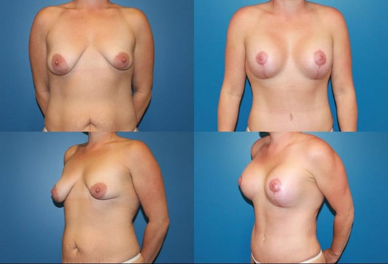 Lollipop Breast Lift with Implants Gallery - Patient 2388604 - Image 1