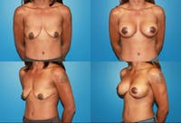 Breast Lift Gallery - Patient 2158670 - Image 1