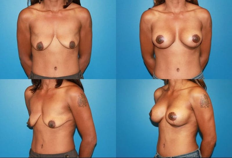 Lollipop Breast Lift with Implants Gallery - Patient 2388605 - Image 1