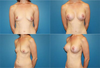 Lollipop Breast Lift with Implants Gallery - Patient 2388606 - Image 1