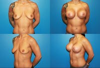 Lollipop Breast Lift with Implants Gallery - Patient 2388608 - Image 1