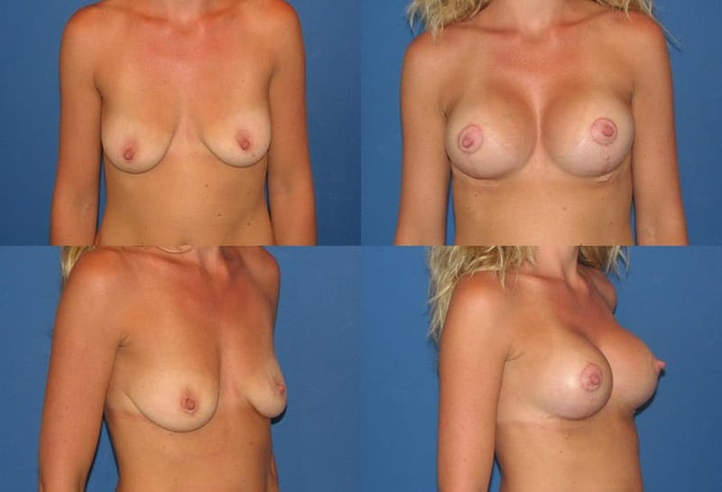 Lollipop Breast Lift with Implants Gallery - Patient 2388609 - Image 1