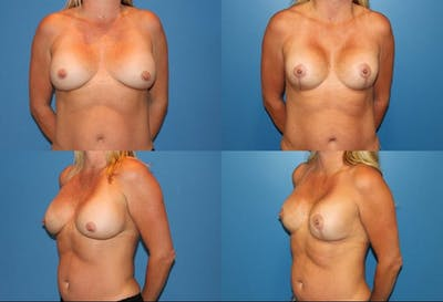 Lollipop Breast Lift with Implants Gallery - Patient 2388610 - Image 1