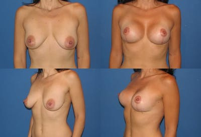 Lollipop Breast Lift with Implants Gallery - Patient 2388611 - Image 1