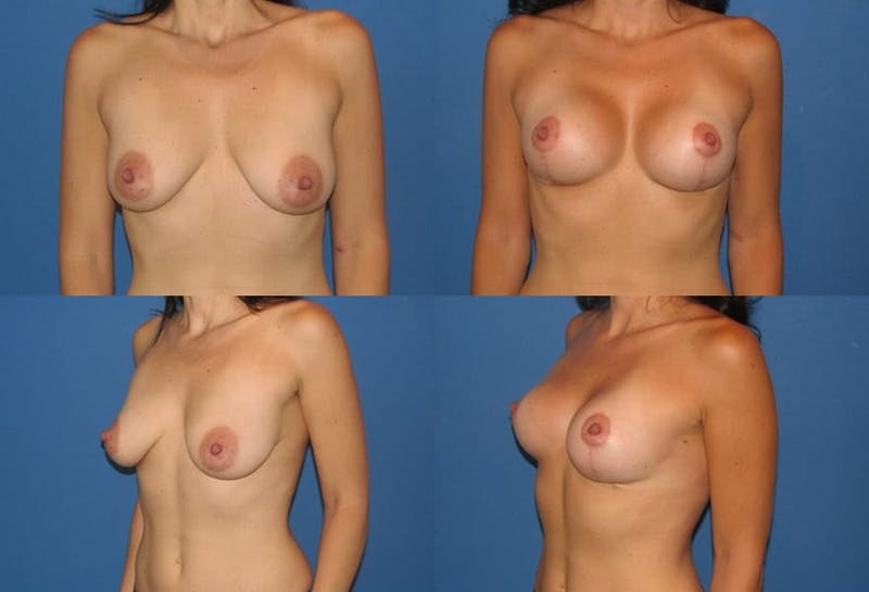Breast Lift Gallery - Patient 2158680 - Image 1