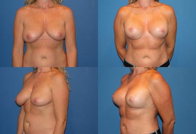 Lollipop Breast Lift with Implants Gallery - Patient 2388612 - Image 1