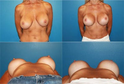 Lollipop Breast Lift with Implants Gallery - Patient 2388613 - Image 1