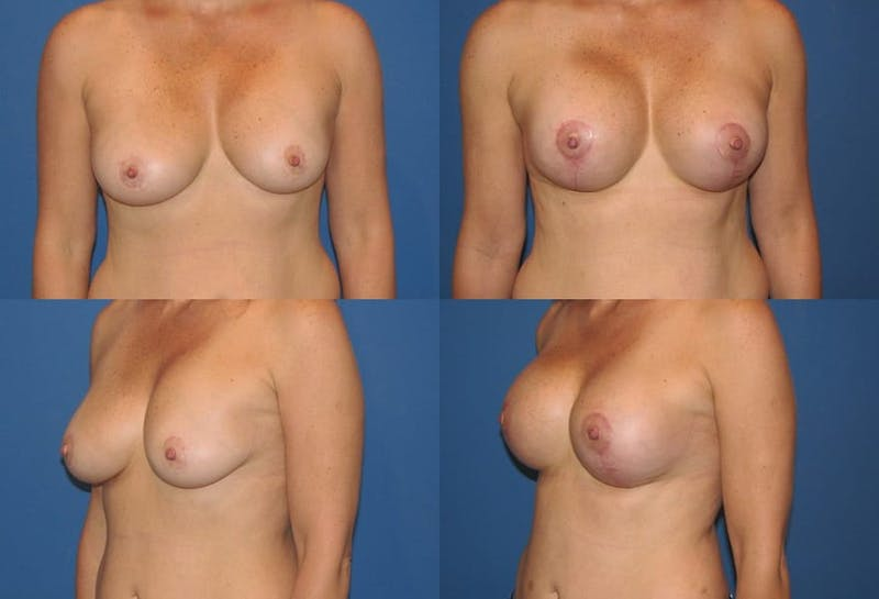 Breast Lift Gallery - Patient 2158685 - Image 1
