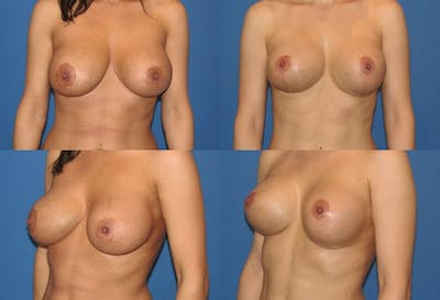 Lollipop Breast Lift with Implants Gallery - Patient 2388615 - Image 1