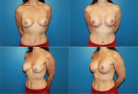 Lollipop Breast Lift with Implants Gallery - Patient 2388616 - Image 1