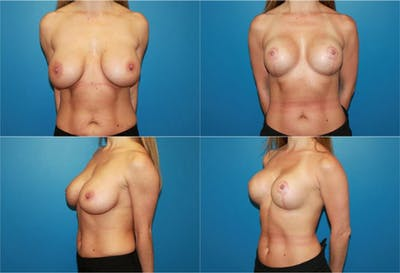 Lollipop Breast Lift with Implants Gallery - Patient 2388617 - Image 1