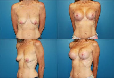 Lollipop Breast Lift with Implants Gallery - Patient 2388618 - Image 1