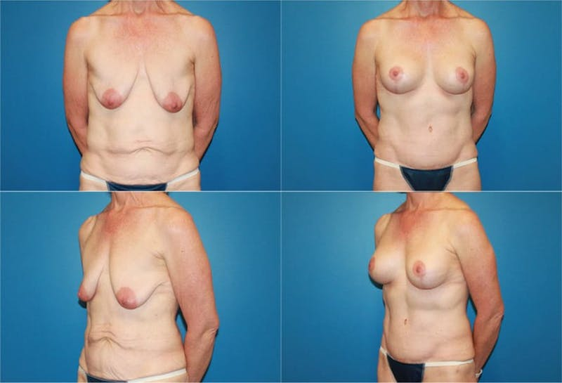 Lollipop Breast Lift with Implants Gallery - Patient 2388619 - Image 1