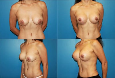 Lollipop Breast Lift with Implants Gallery - Patient 2388620 - Image 1