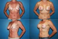 Lollipop Breast Lift with Implants Gallery - Patient 2388621 - Image 1