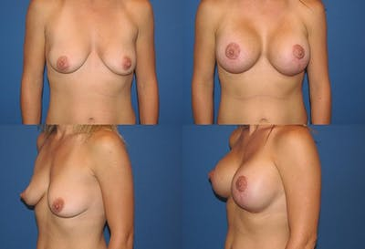 Lollipop Breast Lift with Implants Gallery - Patient 2388622 - Image 1