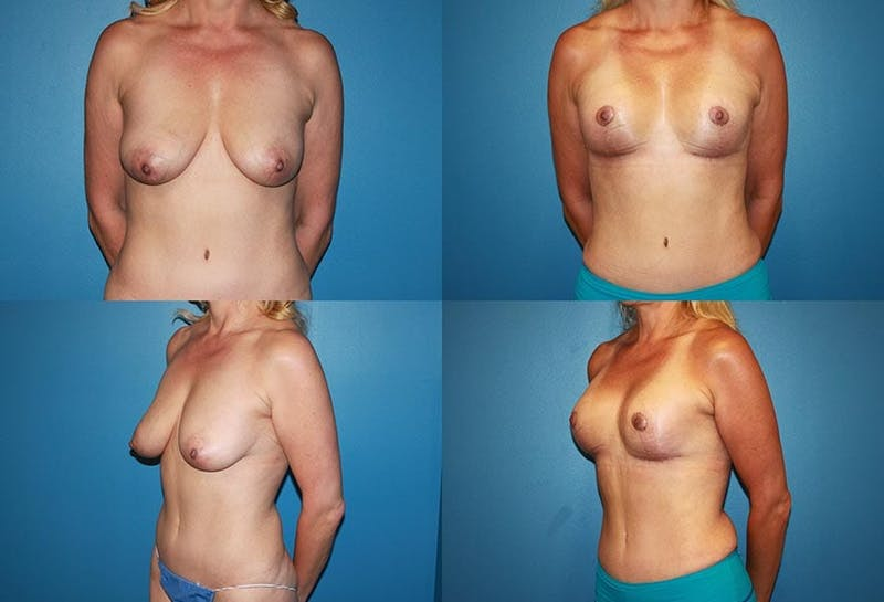 Lollipop Breast Lift with No Implants Gallery - Patient 2388689 - Image 1