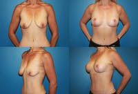 Breast Lift Gallery - Patient 2158698 - Image 1