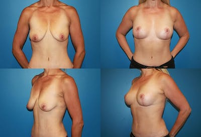 Lollipop Breast Lift with No Implants Gallery - Patient 2388690 - Image 1