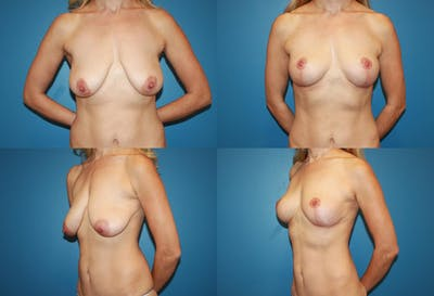 Lollipop Breast Lift with No Implants Gallery - Patient 2388691 - Image 1