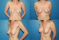 Breast Lift Gallery - Patient 2158700 - Image 1