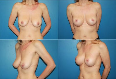 Lollipop Breast Lift with No Implants Gallery - Patient 2388692 - Image 1