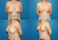 Lollipop Breast Lift with No Implants Gallery - Patient 2388693 - Image 1