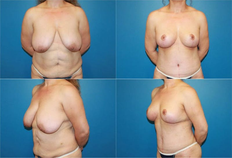 Breast Lift Gallery - Patient 2158701 - Image 1