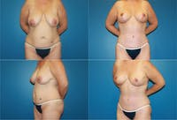 Breast Lift Gallery - Patient 2158702 - Image 1