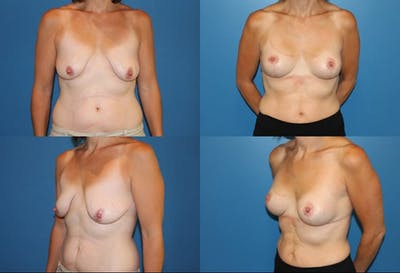 Lollipop Breast Lift with No Implants Gallery - Patient 2388695 - Image 1