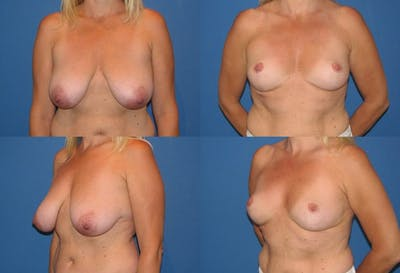 Lollipop Breast Lift with No Implants Gallery - Patient 2388696 - Image 1