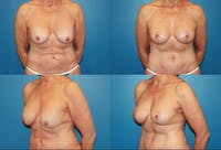 Breast Lift Gallery - Patient 2158706 - Image 1