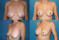 Breast Lift Gallery - Patient 2158707 - Image 1