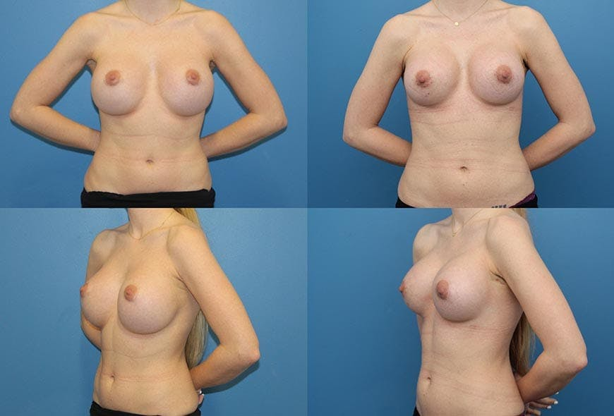 Breast Revision Results in San Diego at Ranch & Coast Plastic Surgery