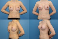 Breast Revision Surgery Gallery - Patient 2158778 - Image 1