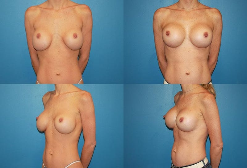 Mal-position- Inferior and/or Lateral Gallery - Patient 2388918 - Image 1