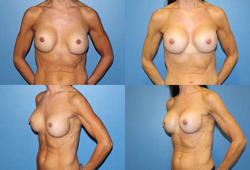 Breast Revision Surgery Gallery - Patient 2158781 - Image 1