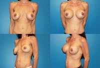 Breast Revision Surgery Gallery - Patient 2158782 - Image 1