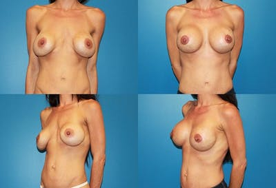 Mal-position- Inferior and/or Lateral Gallery - Patient 2388920 - Image 1