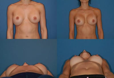 Mal-position- Inferior and/or Lateral Gallery - Patient 2388921 - Image 1